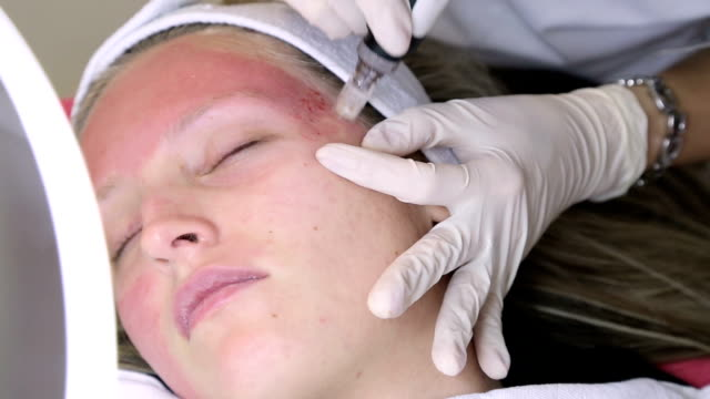 cosmetologist making botox injection - clostridium botulinum stock videos & royalty-free footage