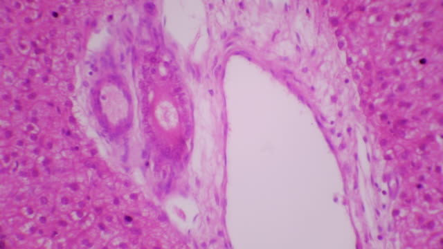 cross section of liver tissue - microscope slide stock videos & royalty-free footage