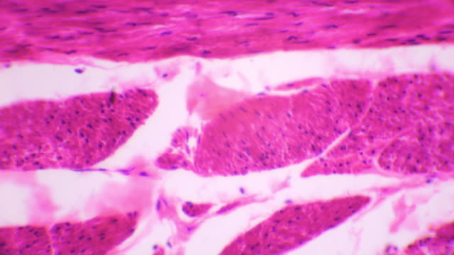 cross section of tissue of urinary bladder transitional epithelium - cell membrane stock videos & royalty-free footage