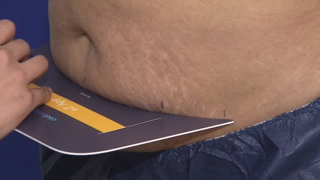 Cryolipolysis popularly known as CoolSculpting is a fat fighting treatment which freezes fat cells causing them to selfdestruct A Practicioner...