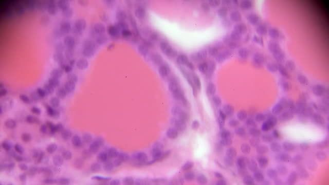 cuboidal epithelium cross section in microscopy - pancreas stock videos & royalty-free footage