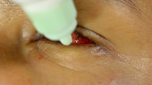 cure bruised eye - venule stock videos & royalty-free footage