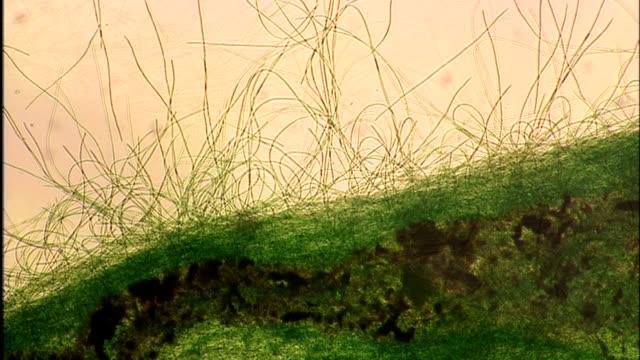 """cyanobacteria, light microscopy"" - photosynthesis stock videos & royalty-free footage"