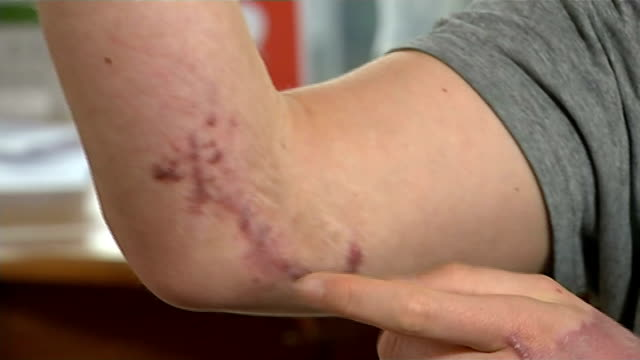 Lorries without cycle safety devices to be banned from London INT Bart Chan setup showing injuries to his leg and arm and interview SOT/ Lorries and...