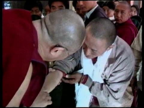 stockvideo's en b-roll-footage met dalai lama examines refugee's injured arm during visit to dharamsala jul 1996 - menselijke arm