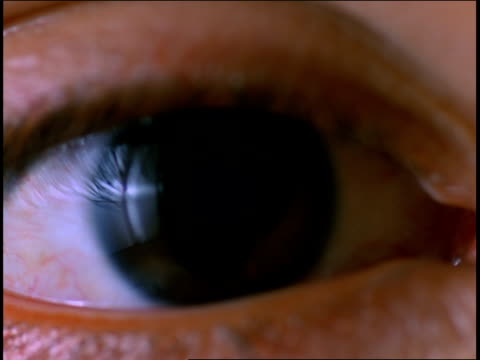 A dark brown eye opens and blinks.