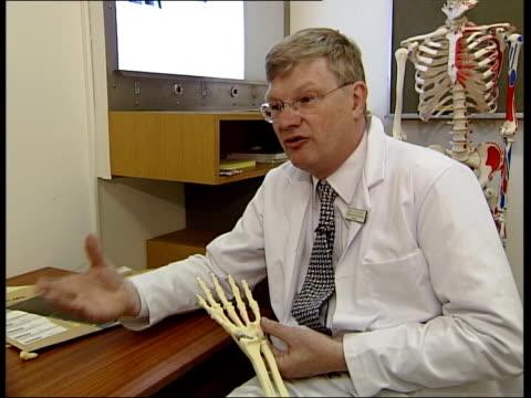 david beckham wrist injury itn london nicholas goddard holding skeleton of hand and pointing to area of injury cms xray of hand on lightbox nicholas... - lightbox stock videos & royalty-free footage