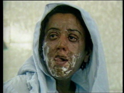 Deadly nerve gas in subway terrorist attack ITN LIB IRAQ Kurdistan Halabja SEQ Victims being treated for chemical burns other injuries from Iraqi...