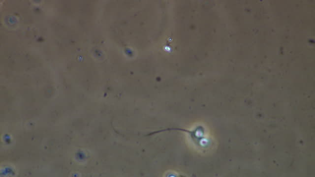 deformed two headed human sperm, phase contrast - flagello video stock e b–roll