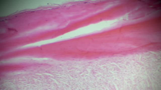 dense connective tissue in microscope - cartilage stock videos & royalty-free footage