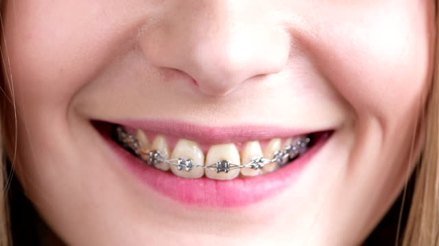 dental braces - suspenders stock videos and b-roll footage