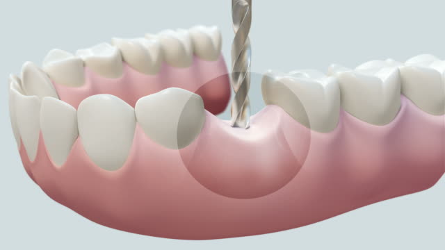 hd: dental implant bright - dental hygiene stock videos & royalty-free footage