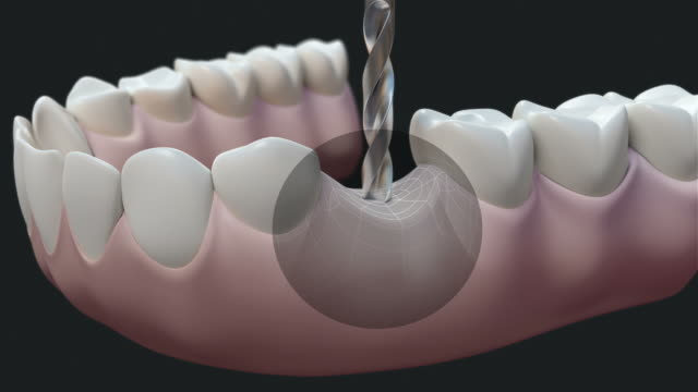 hd: dental implant dark - dental hygiene stock videos & royalty-free footage