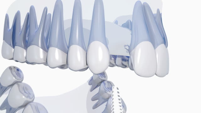 dental implant - human mouth stock videos & royalty-free footage
