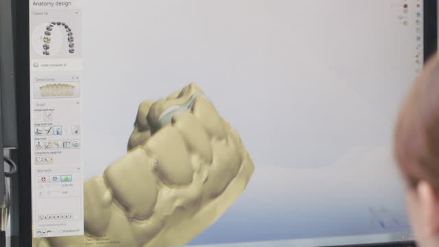dental lab technician designs tooth implant in 3d modeling software - dental hygiene stock videos & royalty-free footage