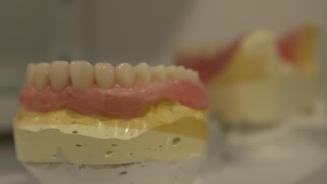 vídeos de stock e filmes b-roll de dental models of teeth on display in dentist's office, new zealand. - dente humano