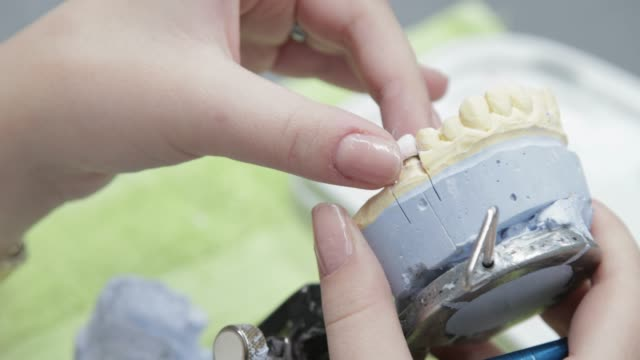 dental technician putting a tooth crown on plaster cast on the articulator - dental implants stock videos and b-roll footage