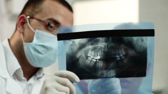 vídeos de stock e filmes b-roll de raio x dental - dentista