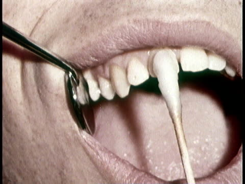 1966 montage dentist applying stanis fluoride to patient's teeth - brushing teeth stock videos & royalty-free footage