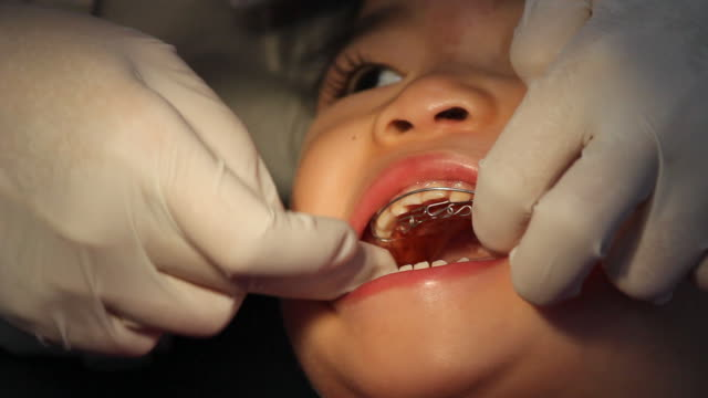 dentist carefullly repeatedly adjust teeth braces for asian panic baby. - brace stock videos and b-roll footage