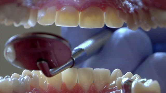 ecu, dentist examining patient's teeth, ann arbor, michigan, usa - 歯点の映像素材/bロール