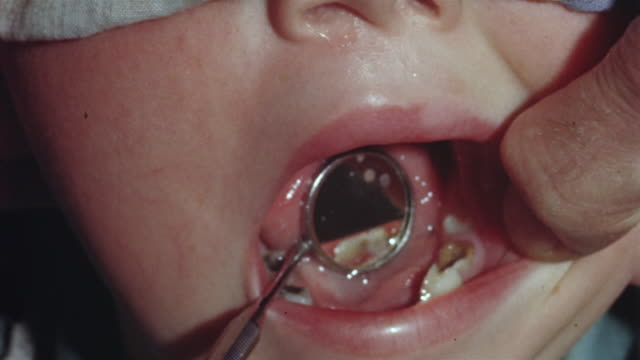 1955 cu dentist examining tooth cavity with angled mirror in child's mouth/ usa - filling stock videos & royalty-free footage