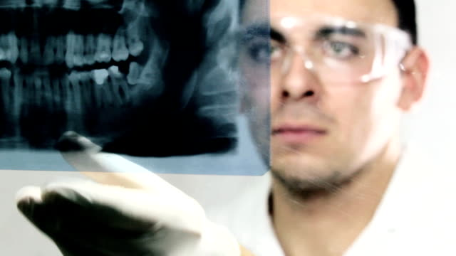 dentist examining x-ray image - tooth care stock videos and b-roll footage