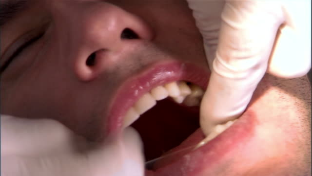 dentist flosses man's teeth - disposable gloves stock videos and b-roll footage