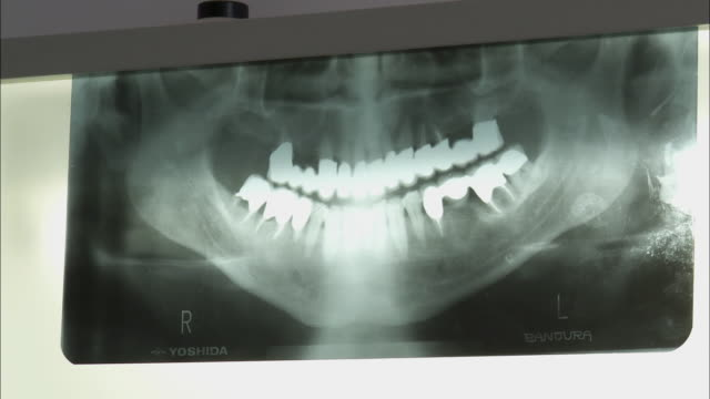 stockvideo's en b-roll-footage met cu dentist hand pointing at x-ray image of patients teeth / brussels, belgium - medische röntgenfoto