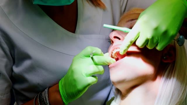 zahnarzt intervention - menschlicher zahn stock-videos und b-roll-filmmaterial