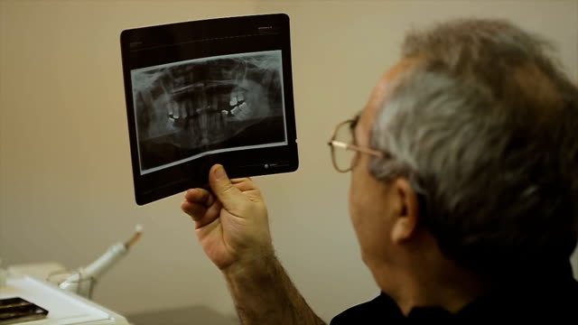 dentist looking and  interpreters dental x-ray - radiographer stock videos & royalty-free footage