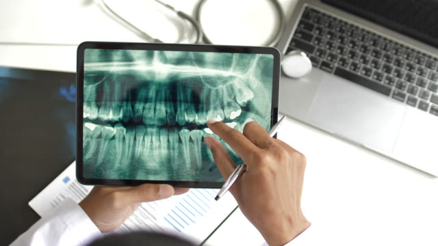 dentist looking at human teeth x-ray on digital tablet, top view - panoramic stock videos & royalty-free footage