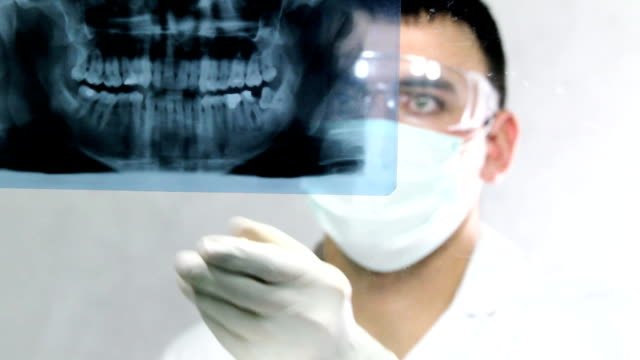 dentist looking at tooth x-ray. - dental implants stock videos and b-roll footage