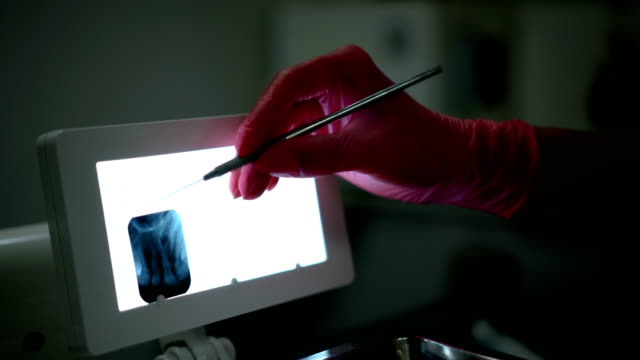 dentist looking at x-ray image of teeth - tooth care stock videos and b-roll footage