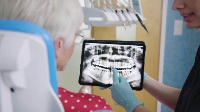 dentist showing test results to senior patient - glove stock videos and b-roll footage