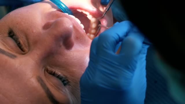 dentist treating teeth to woman patient - dental health stock videos & royalty-free footage