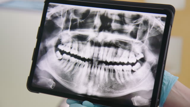 dentist with teeth x-ray image on digital tablet - dental hygiene stock videos & royalty-free footage