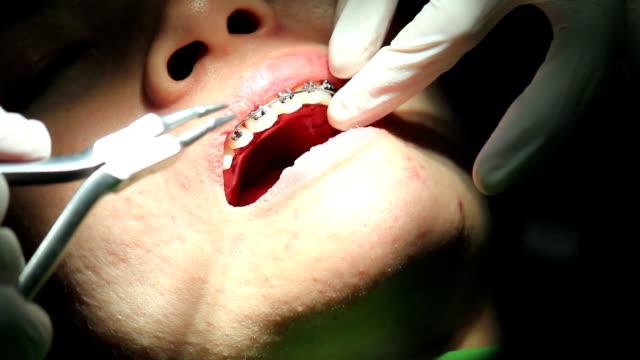 Zahnarzt arbeitet an hospital (orthodontics Behandlung)