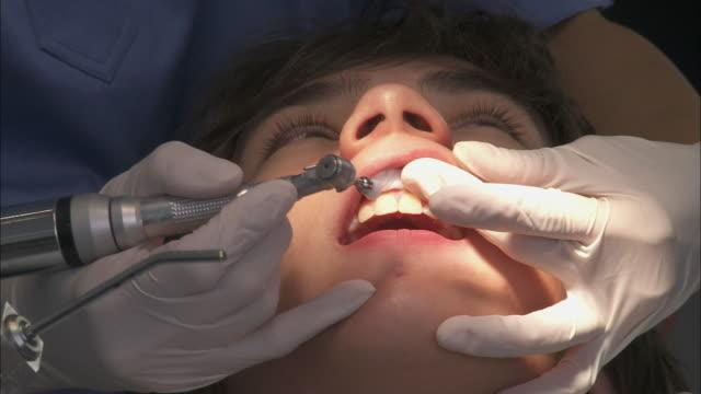 stockvideo's en b-roll-footage met cu dentist working on teenage boy's (16-17) teeth / brussels, belgium - tandarts