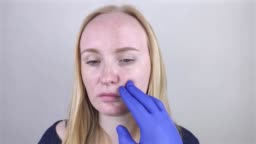 A dermatologist in blue medical gloves examines a patient's oily skin. Oily and problem skin. Portrait of a blonde girl with acne, oily skin and pigmentation.