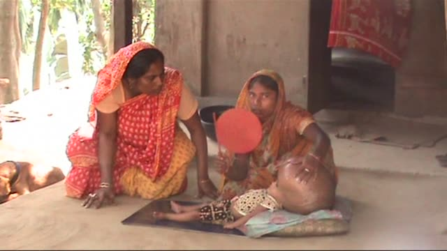 desperate indian father whose young child suffers from a condition that caused her head to swell up to an enormous size says he is praying for a... - miracle stock videos & royalty-free footage