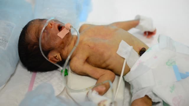 Despite a dramatic fall in the infant mortality rate 15000 children aged under five still die each day around the world from preventable diseases a...