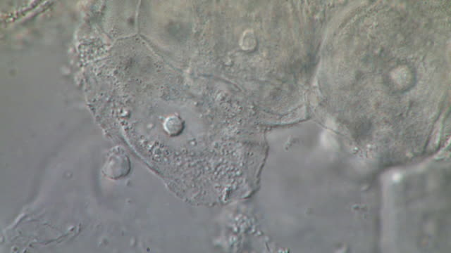 detached epithelial cells from human tongue scrape, with various types of swimming bacteria. nomarski differential interference contrast, horizontal field of view 180 micrometres - human tongue stock videos & royalty-free footage