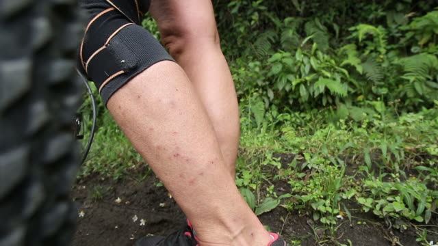 Detail of insect bites on bicyclist's leg