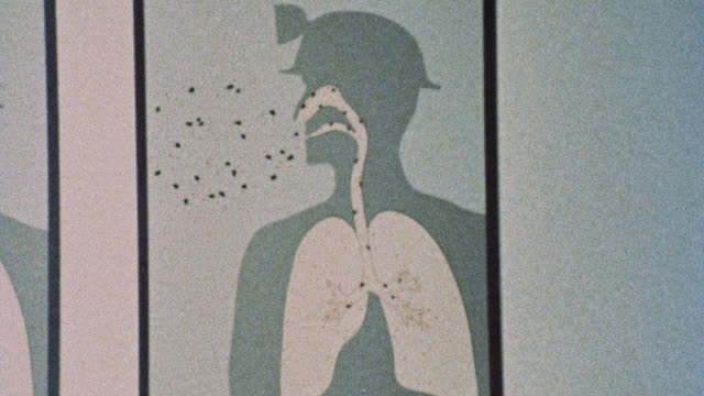 1973 montage diagram of lungs infected by dust particles of different sizes / united kingdom - lung stock videos & royalty-free footage