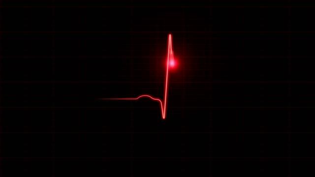 ekg diagram on black background - human heart stock videos & royalty-free footage