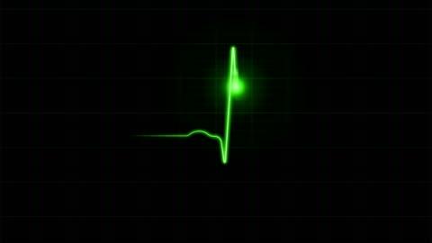 ekg diagram on black background - the human body stock videos & royalty-free footage