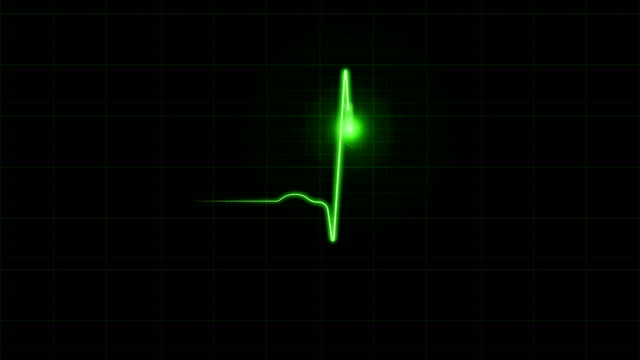 ekg diagram on black background - the human body stock videos & royalty-free footage