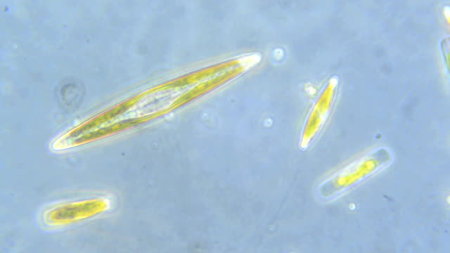 diatom algae - alge stock-videos und b-roll-filmmaterial