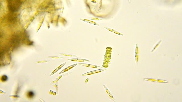 diatoms micrograph